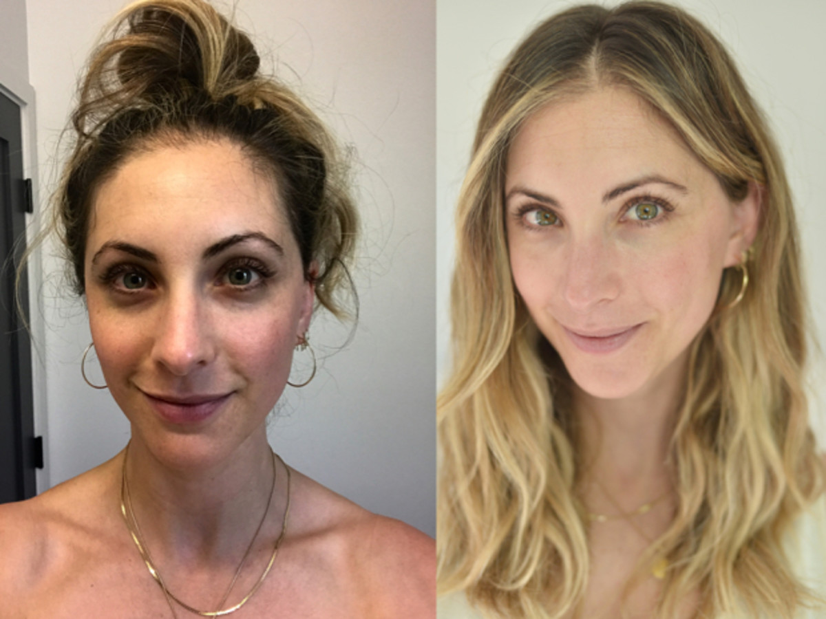 {Before/After, both without makeup}