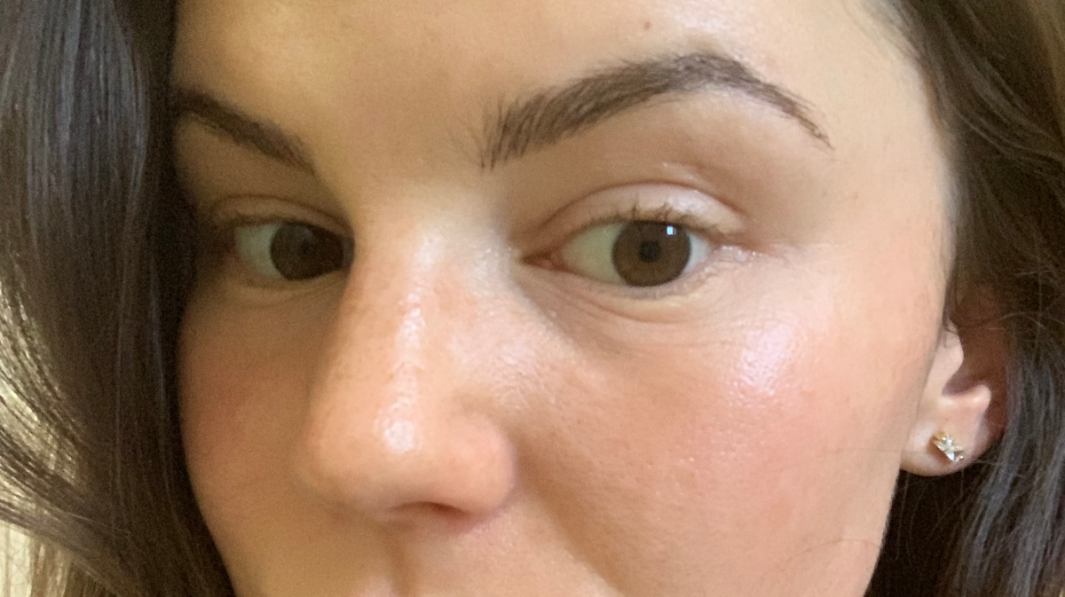 Photo taken Wednesday, four days after procedure