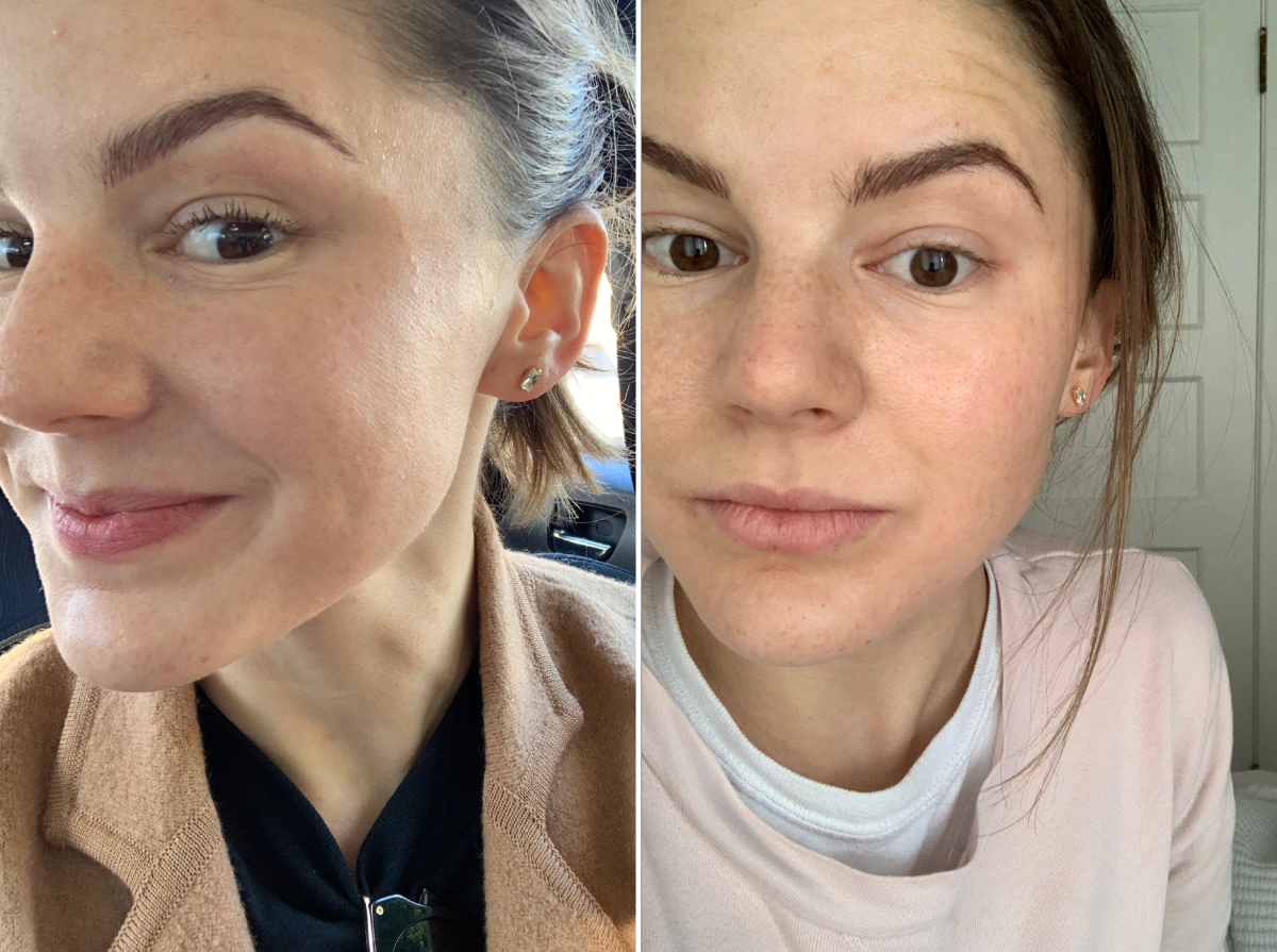 Left: Minutes after the procedure; Right: The next morning (literally still in my pajamas—see how the brows are much darker the next day)